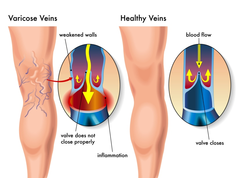 How Does Being Constipated Promote Varicose Veins?
