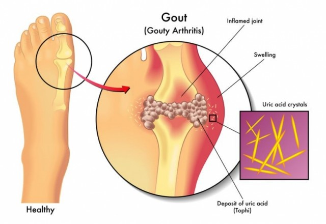 "Is Your Diet ""Rich"" Enough to get Gout?"