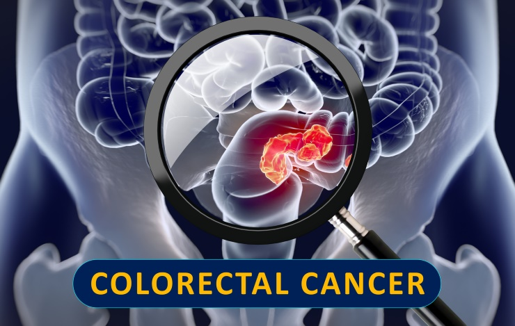 Three Colorectal Cancer Fighting Foods Drcarney Com Blog Drcarney Com