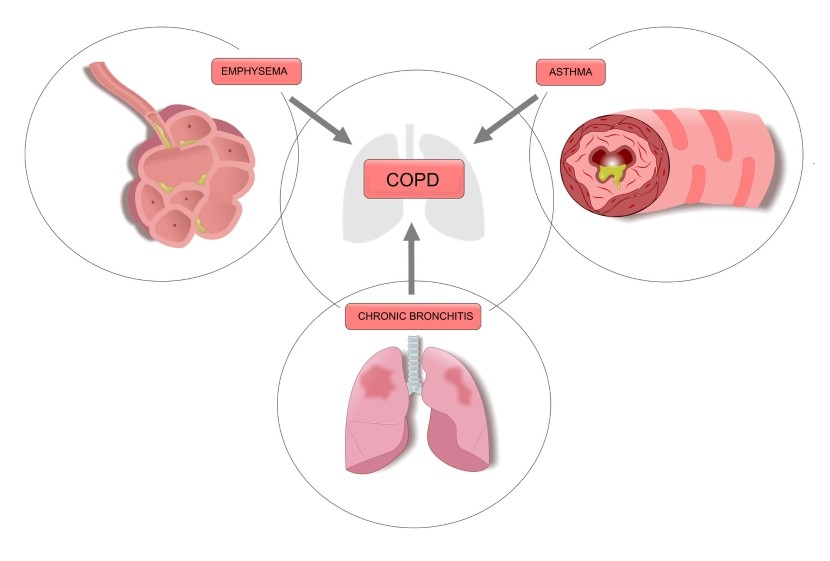 Smoking is the Leading Cause of COPD