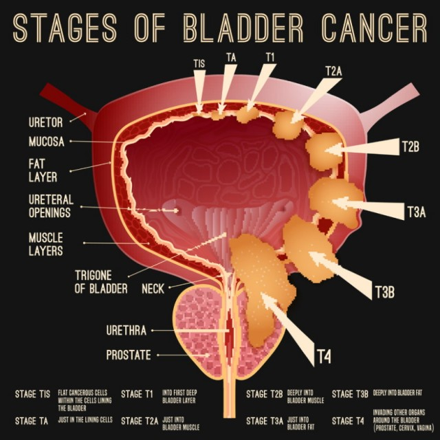 Bladder Cancer Stages
