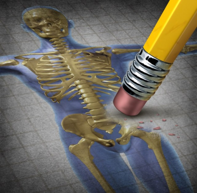 Osteoporosis: Bone Being Erased From Skeleton