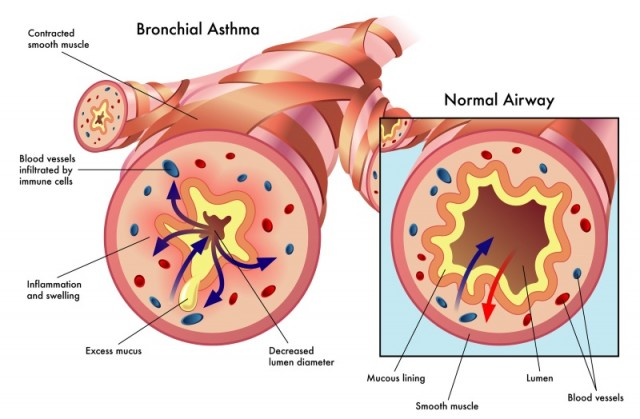 Bronchial Asthma Illustration