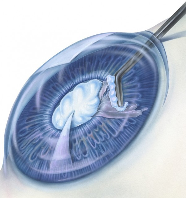 Cataract With Surgical Instrument