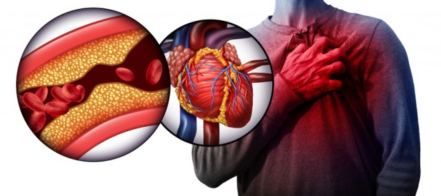 Reduce Your Risk of Clogged Arteries Leading to Heart Failure