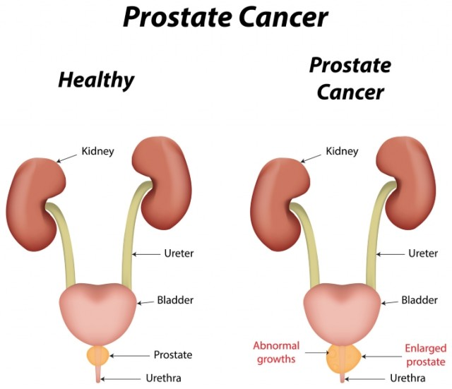 Fat Increases Prostate Cancer Development and Mortality Risk?