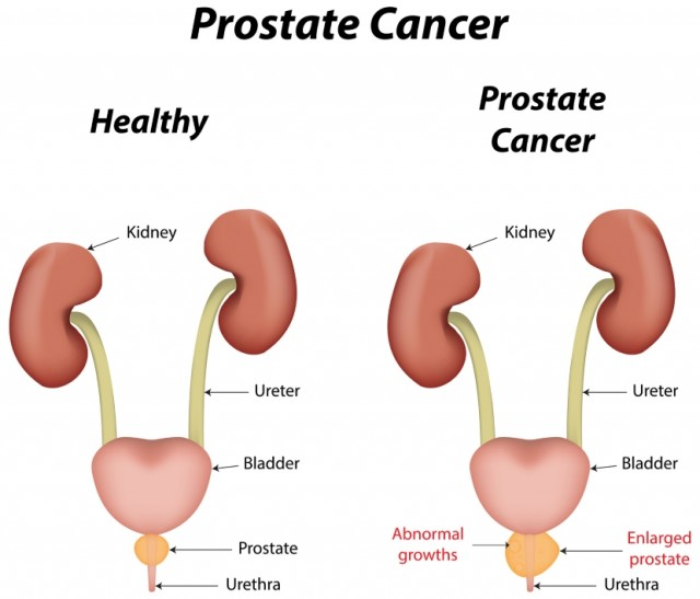 Using Diet to Help Prevent Prostate Cancer