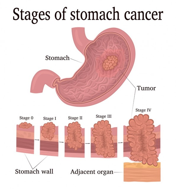 Stages of Stomach Cancer