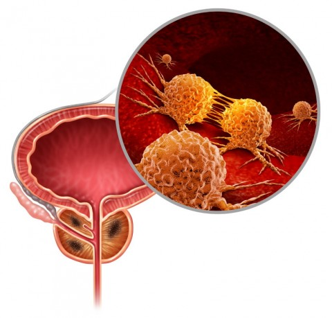 Prostate Cancer Cells Illustration