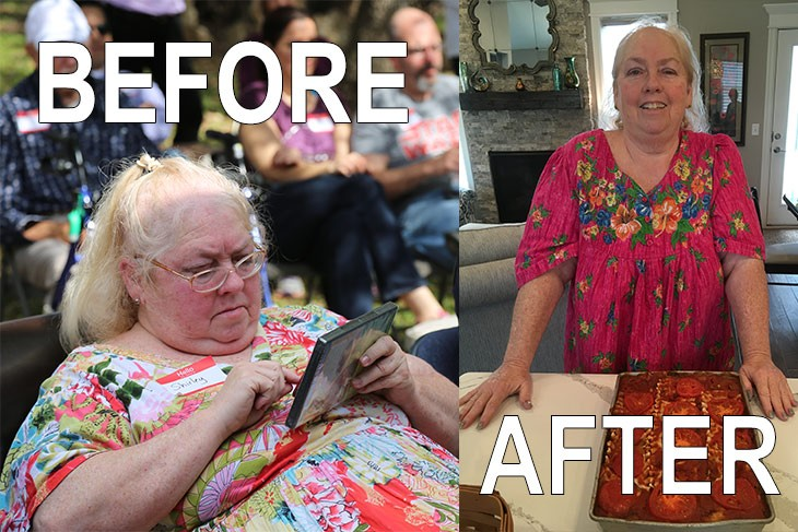 Shirley Loses Weight Loss Surgery, Pounds and Pills
